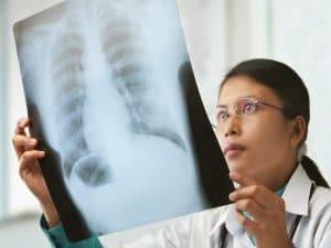 ¿Qué es un cáncer de colon secundario?