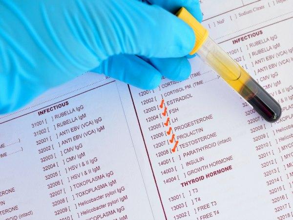 ¿Cómo puede afectar unos niveles altos de FSH a la fertilidad?