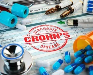 ¿Cómo saber si tengo la enfermedad de Crohn?