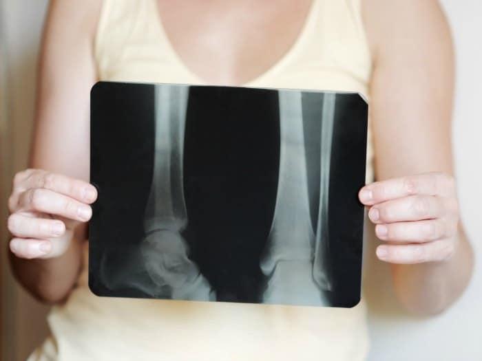 Mantén sanos tus huesos en la menopausia