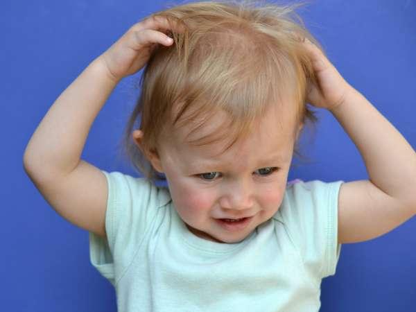 ¿Cómo sé si mi hijo tiene piojos?