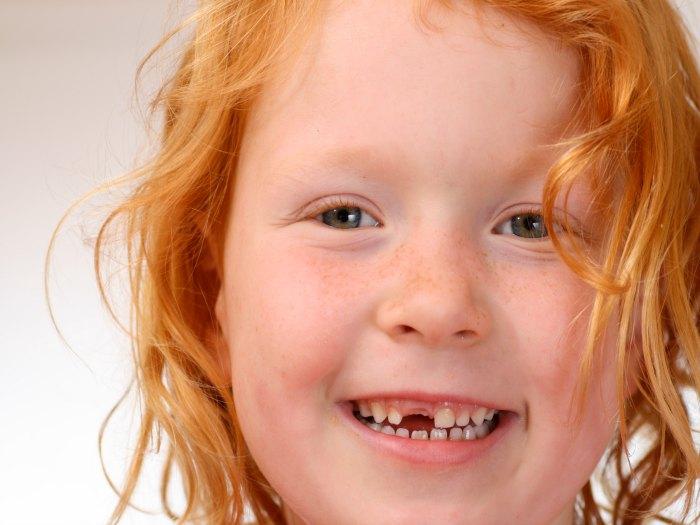 Cuándo se caen los primeros dientes