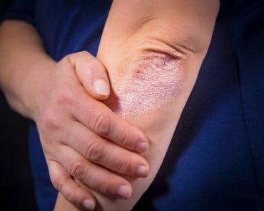 10 Cosas que debes saber sobre la psoriasis