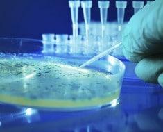 bacteria-e-coli