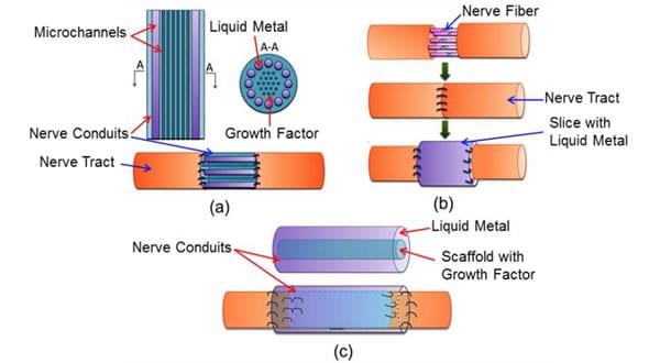 Metal líquido para reconectar nervios