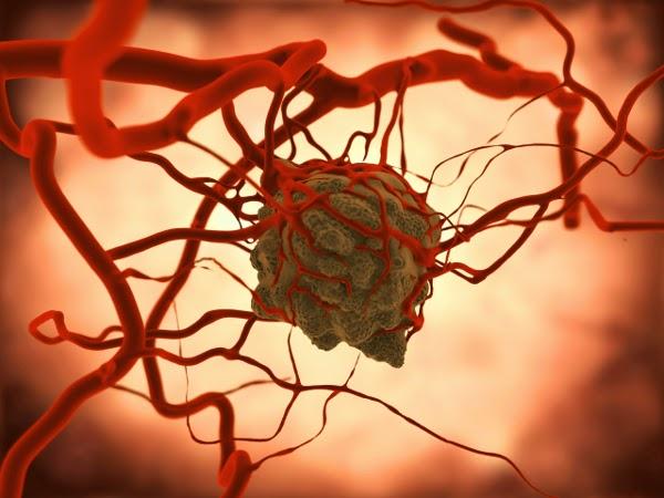 Combatir cáncer con nanotecnología