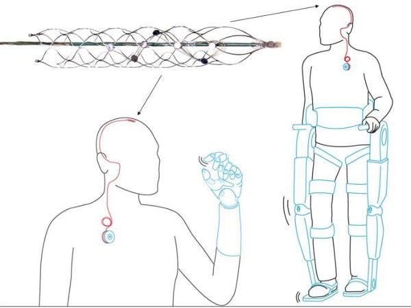 Estentrodo o espina dorsal biónica de la Universidad de Melbourne