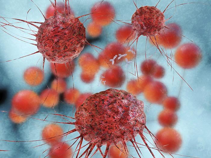 Nanotecnología y cáncer de mama