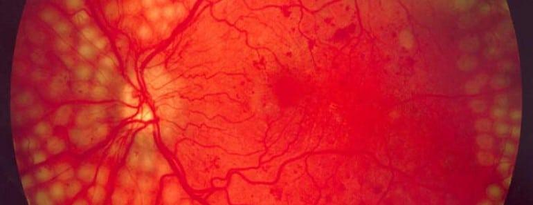 Google prueba con éxito su tecnología de IA para diagnosticar la retinopatía diabética