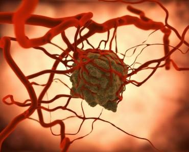Utilizan nanotubos de oro para combatir el cáncer
