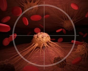 Nuevo tratamiento para el cáncer metastásico con resultados asombrosos