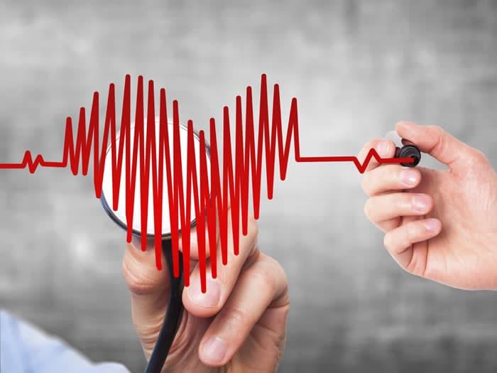 riesgos de volar con problemas de corazón